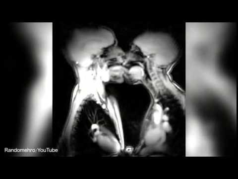 Занятия любовью в магнитно-резонансном томографе